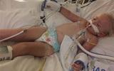 Bé 2 tuổi ra đi sau 8 ngày sốt cao vì mắc một căn bệnh dễ nhầm lẫn với các bệnh khác