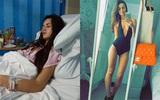 Người mẫu Anh xinh đẹp phải từ bỏ sự nghiệp của mình vì gặp biến chứng nghiêm trọng của một bệnh phụ khoa