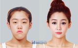 Nhìn những khuôn hàm thay đổi xuất sắc như này, ai cũng muốn tới Hàn Quốc phẫu thuật thẩm mỹ