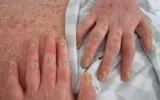Người bệnh ước thà bị ung thư còn hơn: Chân dung căn bệnh bị nhầm với giang mai, HIV...