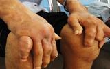 Ghiền ăn lòng lợn - coi chừng biến dạng xương khớp vì bệnh gout