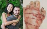 Cuồng ghen tới bệnh hoạn, chồng nhẫn tâm cầm rìu chặt đứt bàn tay vợ