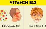 Dù bạn có nhu cầu bổ sung vitamin hay không thì cũng nên biết tất cả những thứ có liên quan đến vitamin như này