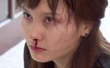 Hỗn láo với mẹ chồng, nàng dâu Bảo Thanh bị chồng đánh bật máu