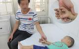 Nghịch bóng đèn bàn thờ ông Địa, bé trai 23 tháng tuổi bị bỏng nặng bàn tay