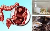 Tránh ngay 3 loại thực phẩm làm tăng nguy cơ mắc bệnh ung thư đại tràng