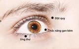 Bác sĩ nhãn khoa chỉ ra những bệnh có thể nhận biết qua đôi mắt của bạn