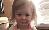 Bé gái bị mắc bệnh dị ứng nước hiếm gặp trên thế giới, ngay cả nước mắt cũng gây đau đớn