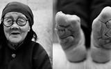 Những đôi chân gót sen cuối cùng tại Trung Quốc: Khi sắc đẹp là nỗi đau suốt đời của người phụ nữ
