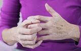 8 thực phẩm người bị viêm khớp cần tránh