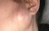 Phát hiện vết sưng nhỏ trên mặt trước khi sinh, người mẹ trẻ đâu ngờ sau 2 tuần lại trở thành khối u ác tính và cô mắc bệnh ung thư giai đoạn cuối