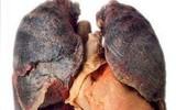 Ung thư phổi gây tử vong số 1: Những dấu hiệu cảnh báo sớm tuyệt đối không nên