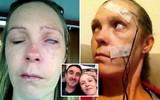 Tưởng chỉ bị côn trùng cắn bình thường, không ngờ người phụ nữ bị bệnh này dẫn đến liệt mặt, không thể nói
