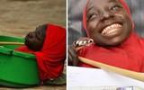 Hành trình của cô gái cả đời sống trong thau nhựa khiến cho hàng triệu người rơi nước mắt