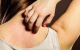 8 cách này có tác dụng loại bỏ tình trạng khô, ngứa và các bệnh về da khác trong mùa đông