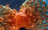 Giảm hẳn 43% nguy cơ ung thư chỉ bằng việc thay đổi vài thói quen xấu mỗi ngày