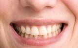 6 sai lầm kinh điển khiến răng ố vàng nhưng bạn vẫn vô tư làm mỗi ngày