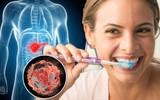 Vi khuẩn gây viêm nha chu có thể là thủ phạm dẫn tới bệnh ung thư cực kì nguy hiểm, tỉ lệ tử vong cao