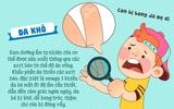 Dấu hiệu chứng tỏ bé cần được bổ sung chất béo ngay lập tức