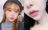 Tiêm môi -