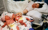 Xúc động hình ảnh cặp chị em song sinh nắm chặt tay nhau lúc chào đời