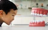 8 điều khiến bạn bất ngờ về bệnh sâu răng