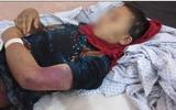 Thai phụ bị gia đình nhà chồng cắt bộ phận sinh dục và đánh đến sẩy cái thai 6 tháng