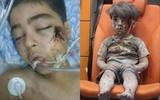 Anh trai của cậu bé Syria ám ảnh cả thế giới tử vong vì vết thương quá nặng