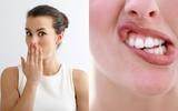 5 dấu hiệu xuất hiện ở miệng bạn tuyệt đối không được bỏ qua