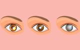 Dù có đôi mắt đẹp đến mấy cũng cần chú ý phòng ngừa 5 bệnh nguy hiểm này