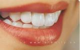 5 thực phẩm làm răng xỉn màu