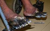 Kinh hoàng hai bàn chân người sống bỗng chết khô