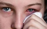 Hà Nội: Bùng phát dịch đau mắt đỏ