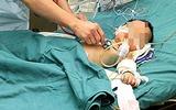 Cách nhận biết sớm viêm phổi ở trẻ