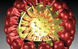 Viêm đường hô hấp: thủ phạm là virút nCoV