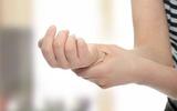 Cảnh giác với triệu chứng tê tay sau ngủ dậy