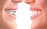 Niềng răng: lợi nhiều, hại cũng không ít