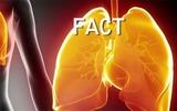 5 sự thật về bệnh viêm phổi tất cả mọi người cần biết