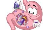 Cạch mặt những thói quen vô cùng có hại cho dạ dày