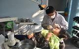 Tẩy trắng răng siêu tốc: hậu quả khó lường