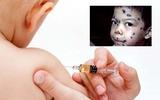 Cảnh giác với bệnh thủy đậu đang gia tăng