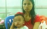 Bé trai 2 tuổi bị thủng đại tràng được cứu sống