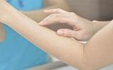 5 biểu hiện ngoài da cảnh báo bất thường trong cơ thể bạn