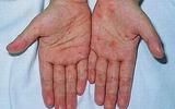 Trẻ dưới 1 tuổi bị bệnh tay chân miệng nhiều hơn
