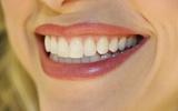 Thực phẩm giúp tạm biệt hàm răng xấu xí