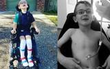 Mắc bệnh hiếm, mất khả năng đi lại, ăn và nói chỉ trong vòng 10 ngày, cậu bé 6 tuổi vẫn không một tiếng khóc