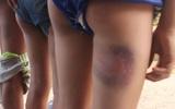 6 học sinh bị đánh bầm mông vì làm gãy cái ghế