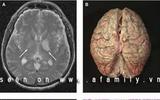 Đề phòng bệnh nhiễm não mô cầu trở lại