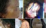 Hình ảnh giáo viên tiểu học bị chồng bạo hành thậm tệ khiến dư luận xôn xao