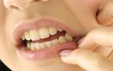 Một số điều ai cũng cần biết để ngăn ngừa sâu răng